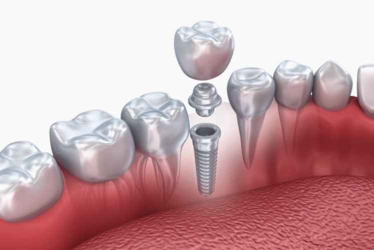 Implantes-dentales-3d
